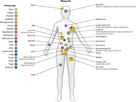 Whole-Exome Sequencing of Metastatic Cancer | Genetics and