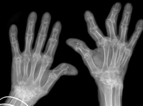 New wind in the sails of rheumatoid arthritis research